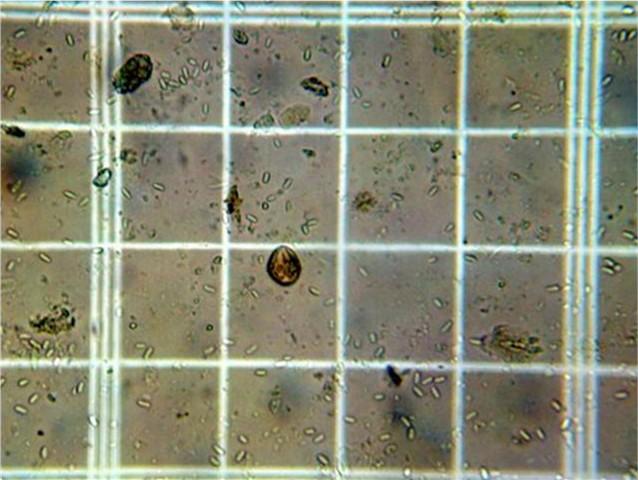 N. ceranae spores